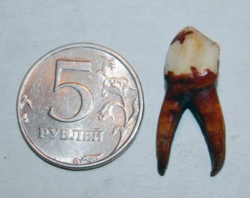 Зуб великана